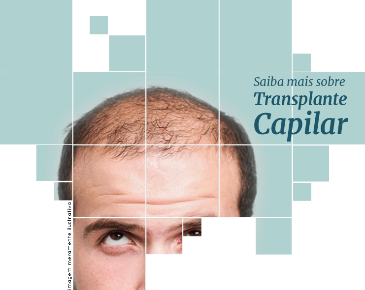 cirurgia transplante capilar